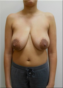 Body Lift Before Photo by William Lao, MD; New York, NY - Case 33805