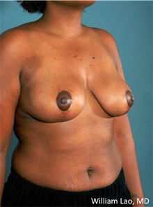 Breast Reduction After Photo by William Lao, MD; New York, NY - Case 33806