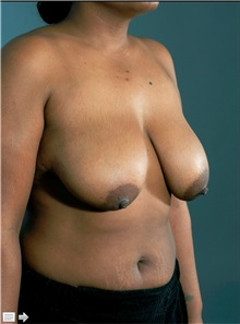 Breast Reduction Before Photo by William Lao, MD; New York, NY - Case 33806