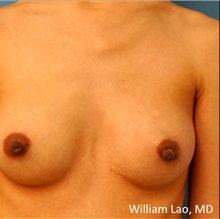 Breast Reconstruction After Photo by William Lao, MD; New York, NY - Case 33807