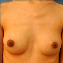Breast Reconstruction Before Photo by William Lao, MD; New York, NY - Case 33807