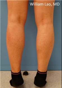 Botulinum Toxin After Photo by William Lao, MD; New York, NY - Case 33808