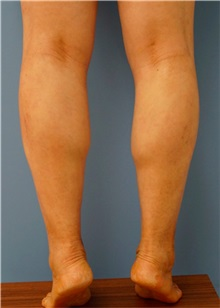 Botulinum Toxin Before Photo by William Lao, MD; New York, NY - Case 33808
