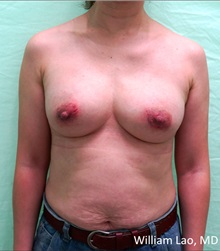 Breast Implant Removal After Photo by William Lao, MD; New York, NY - Case 33809