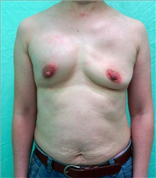 Breast Implant Removal Before Photo by William Lao, MD; New York, NY - Case 33809