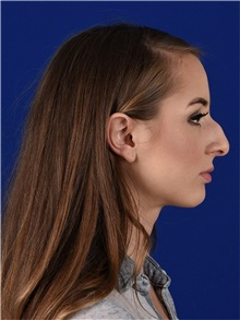 Rhinoplasty Before Photo by Daniel Shapiro, MD; Paradise Valley, AZ - Case 35387