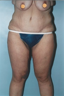 Tummy Tuck After Photo by Kristoffer Ning Chang, MD; San Francisco, CA - Case 10358