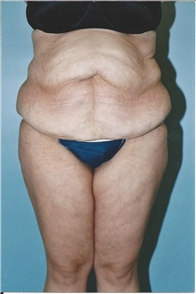 Tummy Tuck Before Photo by Kristoffer Ning Chang, MD; San Francisco, CA - Case 10358