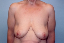 Breast Lift After Photo by Kristoffer Ning Chang, MD; San Francisco, CA - Case 10385