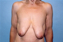 Breast Lift Before Photo by Kristoffer Ning Chang, MD; San Francisco, CA - Case 10385