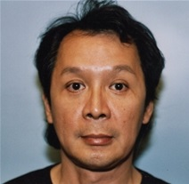 Facelift Before Photo by Kristoffer Ning Chang, MD; San Francisco, CA - Case 20006