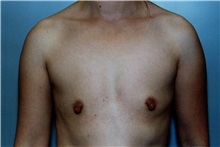 Breast Augmentation Before Photo by Kristoffer Ning Chang, MD; San Francisco, CA - Case 23164
