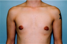 Male Breast Reduction After Photo by Kristoffer Ning Chang, MD; San Francisco, CA - Case 23253