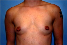 Male Breast Reduction Before Photo by Kristoffer Ning Chang, MD; San Francisco, CA - Case 23253