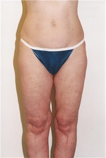 Liposuction Before Photo by Kristoffer Ning Chang, MD; San Francisco, CA - Case 28247