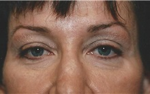 Eyelid Surgery After Photo by Kristoffer Ning Chang, MD; San Francisco, CA - Case 28743
