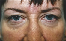 Eyelid Surgery Before Photo by Kristoffer Ning Chang, MD; San Francisco, CA - Case 28743