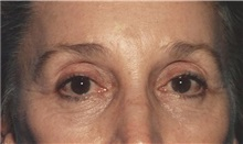 Eyelid Surgery After Photo by Kristoffer Ning Chang, MD; San Francisco, CA - Case 28744