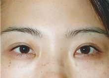 Eyelid Surgery After Photo by Kristoffer Ning Chang, MD; San Francisco, CA - Case 28752
