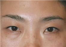 Eyelid Surgery Before Photo by Kristoffer Ning Chang, MD; San Francisco, CA - Case 28752