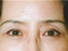 Eyelid Surgery After Photo by Kristoffer Ning Chang, MD; San Francisco, CA - Case 28753