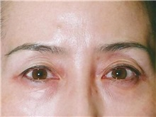 Eyelid Surgery Before Photo by Kristoffer Ning Chang, MD; San Francisco, CA - Case 28753
