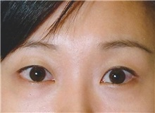 Eyelid Surgery Before and After Photos | ASPS