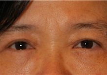 Eyelid Surgery After Photo by Kristoffer Ning Chang, MD; San Francisco, CA - Case 28756
