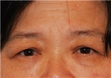 Eyelid Surgery Before Photo by Kristoffer Ning Chang, MD; San Francisco, CA - Case 28756