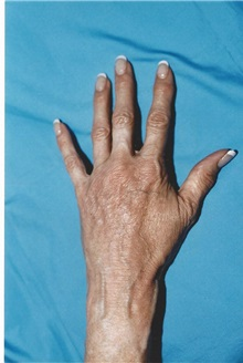 Dermal Fillers After Photo by Kristoffer Ning Chang, MD; San Francisco, CA - Case 29764