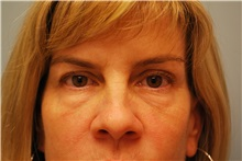 Eyelid Surgery Before Photo by Kristoffer Ning Chang, MD; San Francisco, CA - Case 29768