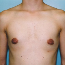 Breast Reduction After Photo by Kristoffer Ning Chang, MD; San Francisco, CA - Case 29809