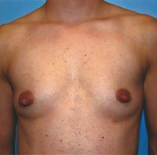 Breast Reduction Before Photo by Kristoffer Ning Chang, MD; San Francisco, CA - Case 29809