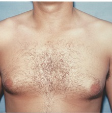 Breast Reduction Before Photo by Kristoffer Ning Chang, MD; San Francisco, CA - Case 29811