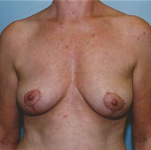 Breast Lift After Photo by Kristoffer Ning Chang, MD; San Francisco, CA - Case 29894