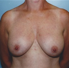 Breast Lift Before Photo by Kristoffer Ning Chang, MD; San Francisco, CA - Case 29894