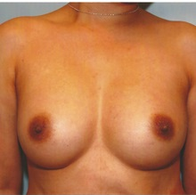 Breast Augmentation After Photo by Kristoffer Ning Chang, MD; San Francisco, CA - Case 29896