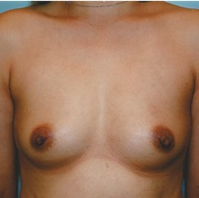 Breast Augmentation Before Photo by Kristoffer Ning Chang, MD; San Francisco, CA - Case 29896