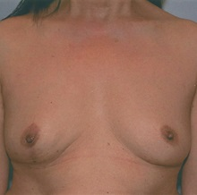 Breast Reconstruction After Photo by Kristoffer Ning Chang, MD; San Francisco, CA - Case 29898
