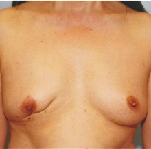 Breast Reconstruction Before Photo by Kristoffer Ning Chang, MD; San Francisco, CA - Case 29898