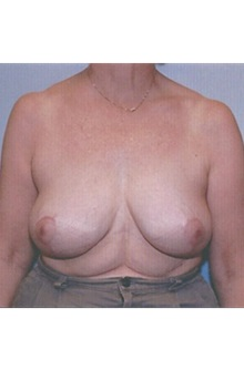 Breast Lift After Photo by Kristoffer Ning Chang, MD; San Francisco, CA - Case 29906