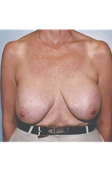 Breast Lift Before Photo by Kristoffer Ning Chang, MD; San Francisco, CA - Case 29906