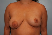 Breast Augmentation After Photo by Kristoffer Ning Chang, MD; San Francisco, CA - Case 30807