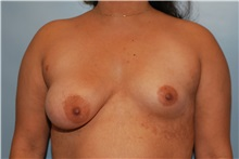 Breast Augmentation Before Photo by Kristoffer Ning Chang, MD; San Francisco, CA - Case 30807
