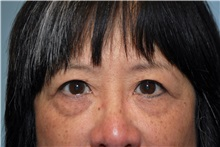 Eyelid Surgery After Photo by Kristoffer Ning Chang, MD; San Francisco, CA - Case 31238