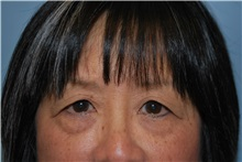 Eyelid Surgery Before Photo by Kristoffer Ning Chang, MD; San Francisco, CA - Case 31238