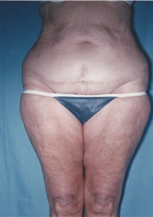 Tummy Tuck After Photo by Kristoffer Ning Chang, MD; San Francisco, CA - Case 32601