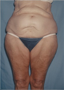 Tummy Tuck Before Photo by Kristoffer Ning Chang, MD; San Francisco, CA - Case 32601