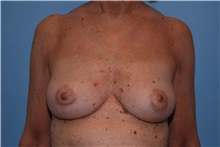 Breast Implant Removal After Photo by Kristoffer Ning Chang, MD; San Francisco, CA - Case 35517