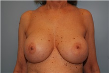Breast Implant Removal Before Photo by Kristoffer Ning Chang, MD; San Francisco, CA - Case 35517
